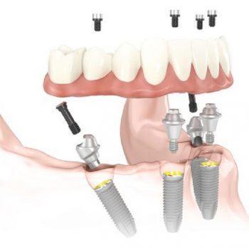 En qué consiste la técnica de implantes All-on-4 ®