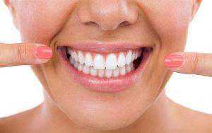Consejos de estética dental