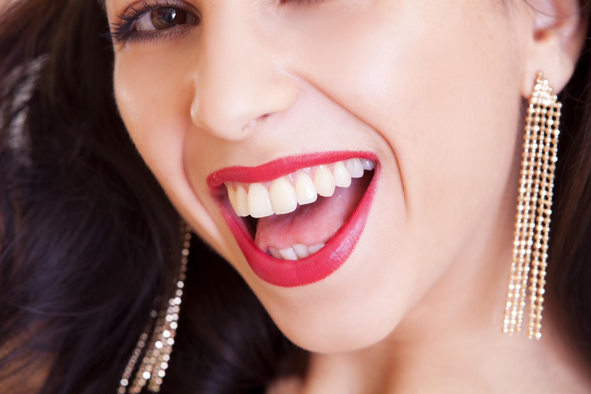 blanqueamiento dental en Barcelona