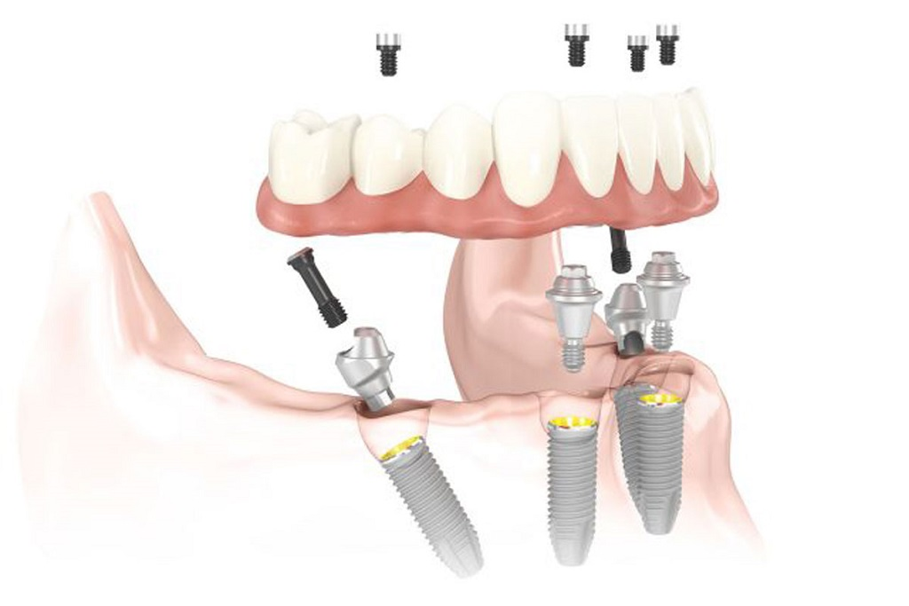 Implantes dentales con la técnica All-on-four